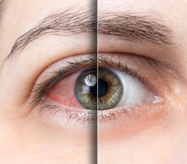 Синдром «сухого глаза»: индивидуальная особенность или общемировая проблема?