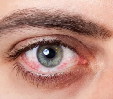 Признаки синдрома «сухого глаза»: почему текут слезы?