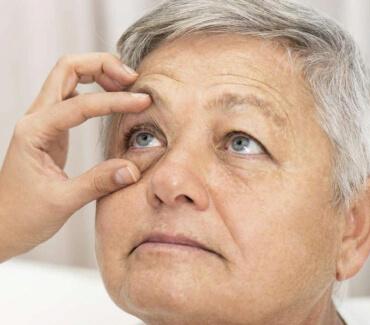 Синдром «сухого ока»